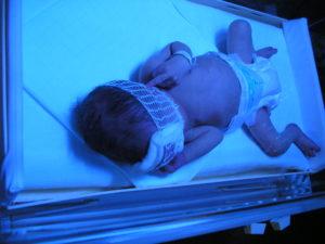 Miminko pod UV lampou v inkubátoru