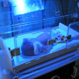 Miminko v inkubátoru - fototerapie